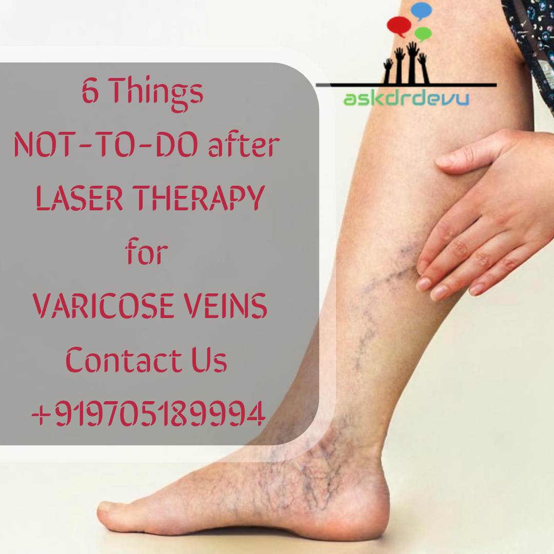 6 Things NOT-TO-DO  after LASER THERAPY for Varicose Veins.