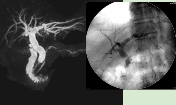 PTBD With Stenting For Malignant Strictures/Cholangiocarcinoma
